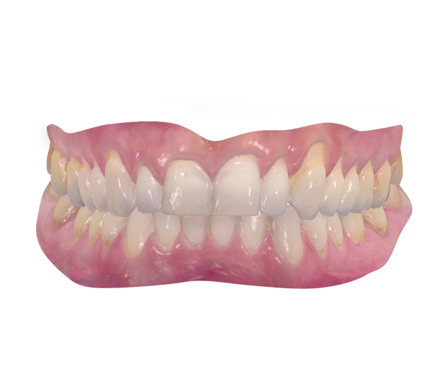 Lakeway, TX Dentist